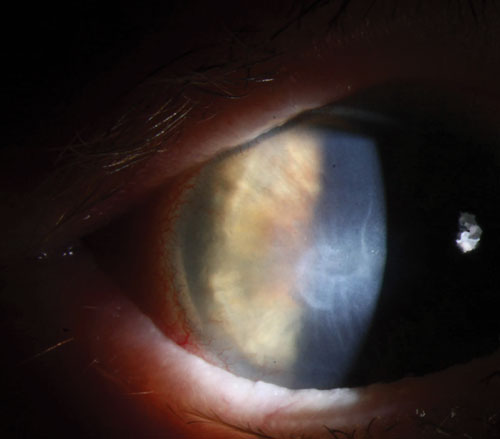 Corneal Scars Are Forever–Or Are They?