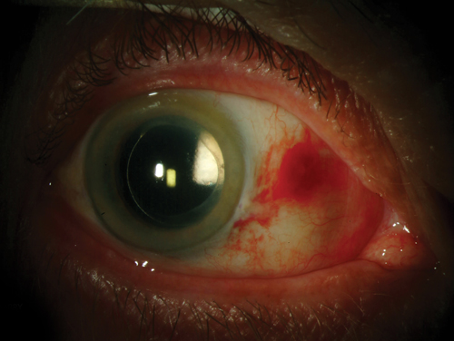 inflammation 6 weeks after cataract surgery)