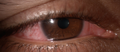 d34dfd77cf Acute contact lens-associated red eye presentation in a 28-year-old Indian  male. He noted associated blurry vision