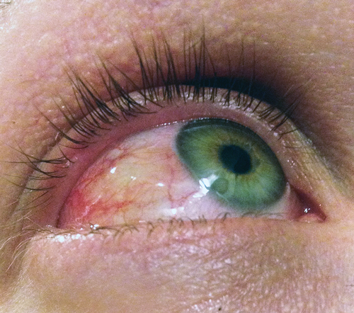 Allergic Conjunctivitis Vs Bacterial Pictures To Pin On: Allergic Conjunctivitis Due To Contact Lens. Bumps On The