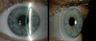 This Patient With Ocular Surface Disease Achieved Clear And Comfortable Vision A Hybrid Lens Photo Alan M Berman Od