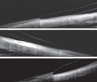 Fig. 3. Here are some OCT image examples. At top, good edge alignment. In the middle, a flat edge lifting off of the conjunctiva. At bottom, a steep edge digging into the conjunctiva. Photos: Jason Jedlika, OD