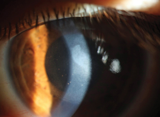 This resolving corneal edema has keratic precipitates directly behind it.