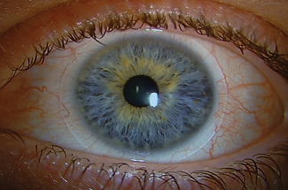 A hypersensitivity or toxic reaction to the preservative in a contact lens solution can cause dry eye symptoms and is typically characterized by conjunctival injection and superficial punctate keratitis. Photo: Heidi Wagner, OD, MPH