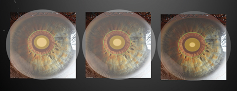 Various multifocal zone sizes within a pupil. Image: Robert L. Davis, OD