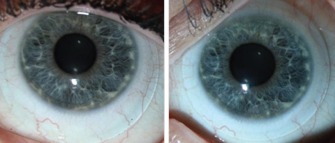 Fig. 4. These images show an inferiorly decentered scleral lens, at left, vs. a well-centered scleral lens, at right. This improvement in centration was accomplished by decreasing the diameter of the lens.