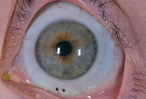 Coding for Medically Necessary Contact Lenses