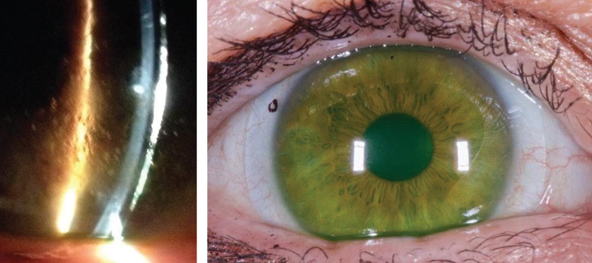 Figs. 2a and 2b. At left, significant surface debris on the lens surface before Hydra-PEG treatment. At right, improved surface wettability after Hydra-PEG treatment. Images: Tom Arnold, OD