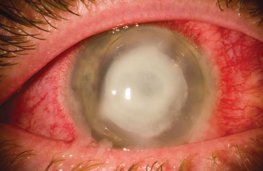 Your Corneal Infection Care Questions—Answered