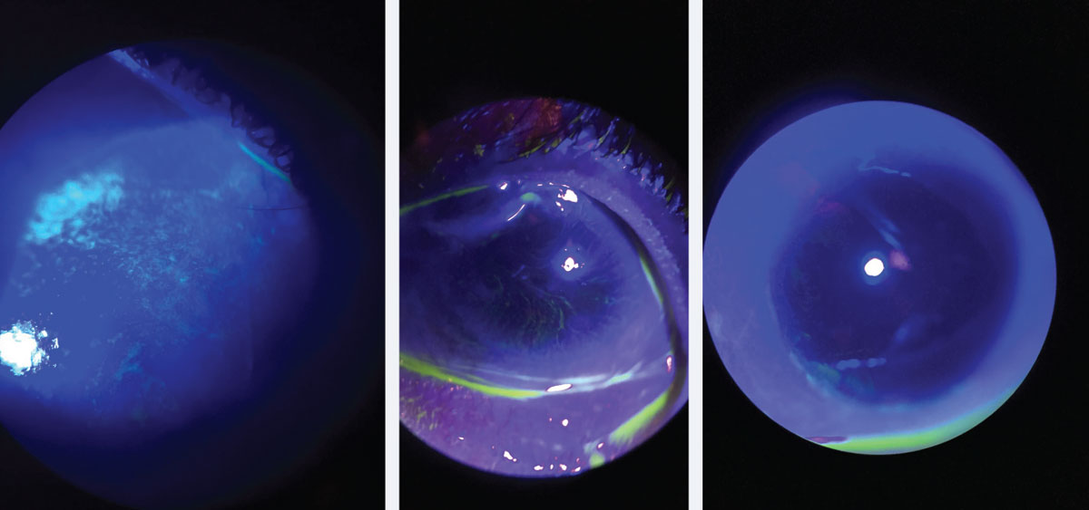 At left, corneal staining in patient with early LSCD. Note the stippled, elongated, almost pill like shape to the areas of staining. Middle, traditional whorl pattern staining with fluorescein. Note that the pattern starts at the limbus and begins to circle towards the apex of the cornea. At right, subtle late staining inferior and temporal with fluorescein of conjunctival cells on cornea in patient with LSCD.