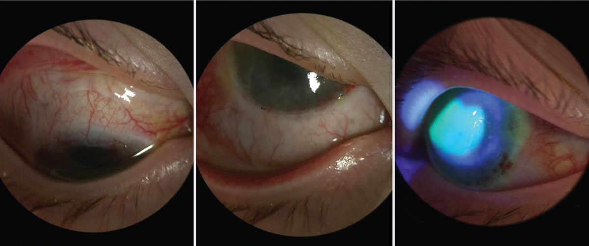 Same patient from Figure 4, one week postoperative after Ir-CLAL. You can see the recessed conjunctiva superior and inferior along the limbus. The patient's central cornea has stain pooling as it continues to re-epithelialize, but there is no peripheral late staining.