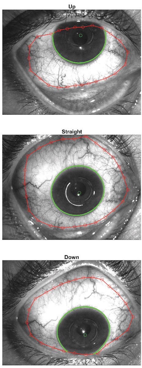 Fig. 1. The sMap3D uses three images in multiple gaze directions to create a single image of the ocular surface. Images: Sheila Morrison, OD.