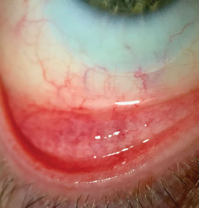 Conditions such as allergic conjunctivitis can hinder success and must be addressed to ensure patient comfort and continued multifocal lens wear.