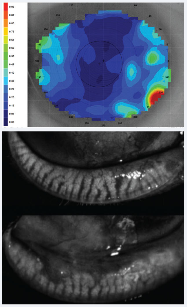 Fig. 4. Above, dynamic tear film stability analysis with cooler colors representing uniform, denser tear layer and hot colors representing thinning and poor consistency, may shed light on CLD related to poor tear film quality. Below, meibography showing healthy glands above and glands with truncation and close to 50% loss inferiorly.