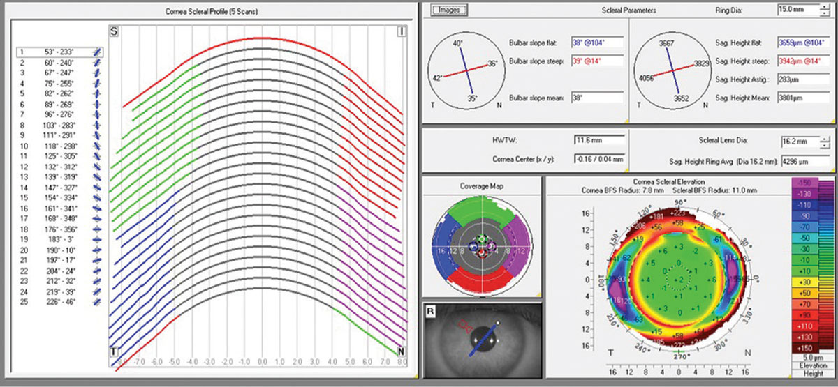 Fig 1. Corneo-scleral profile software from Pentacam tomography system.
