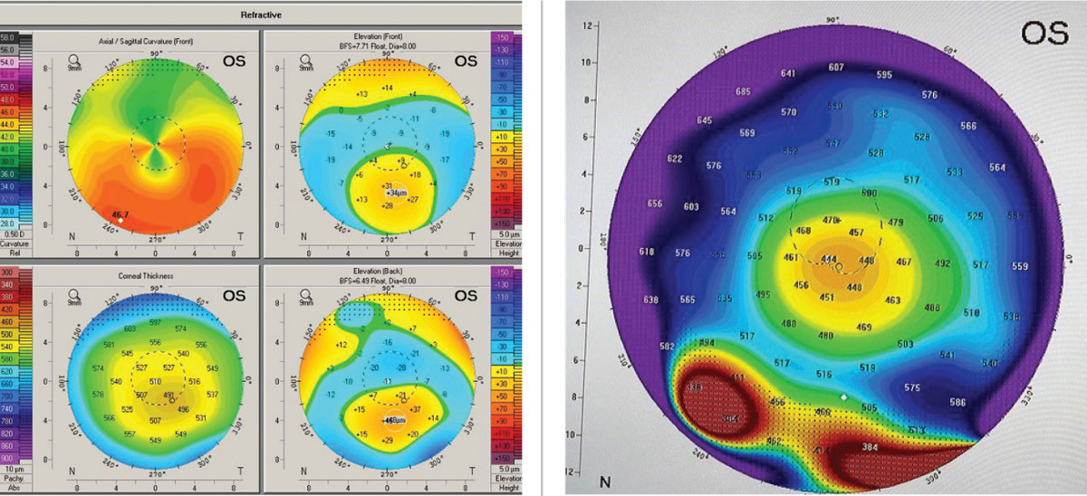 "Figs 2 and 3. (Left) The upper right axial or curvature map of the anterior cornea shows the ""crab claw"" or ""kissing dove"" pattern. (Right) Global pachymetry display from Pentacam with area in true PMD shows the band of inferior peripheral corneal thinning. Images: Tom Arnold, OD."