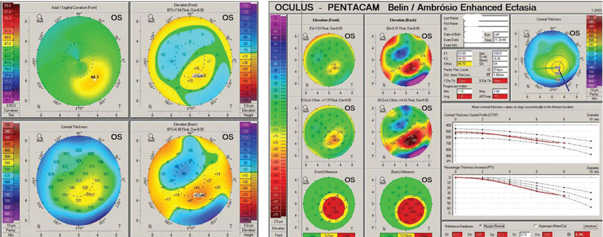 Fig 6. (Left) Pentacam OS 4-Map Refractive Display shows classic keratoconic patterns. (Right) Ectasia Display OS shows strongly positive ectasia detection.