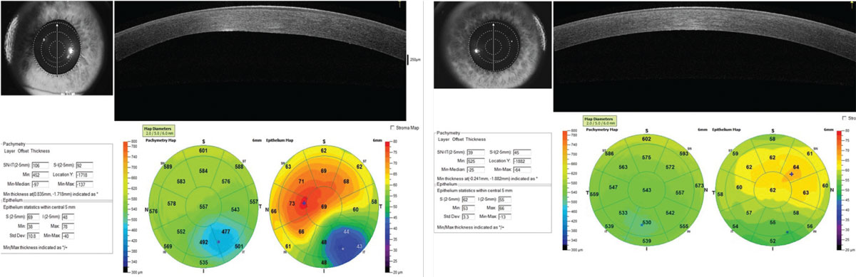 Fig 7. Pachymetry Display. (Left) OS shows abnormal global corneal thickness and a classic pattern of thinning of the epithelium over the cone apex and surrounding epithelial thickening. (Right) OD shows normal global corneal thickness but abnormal epithelial thickness distribution.