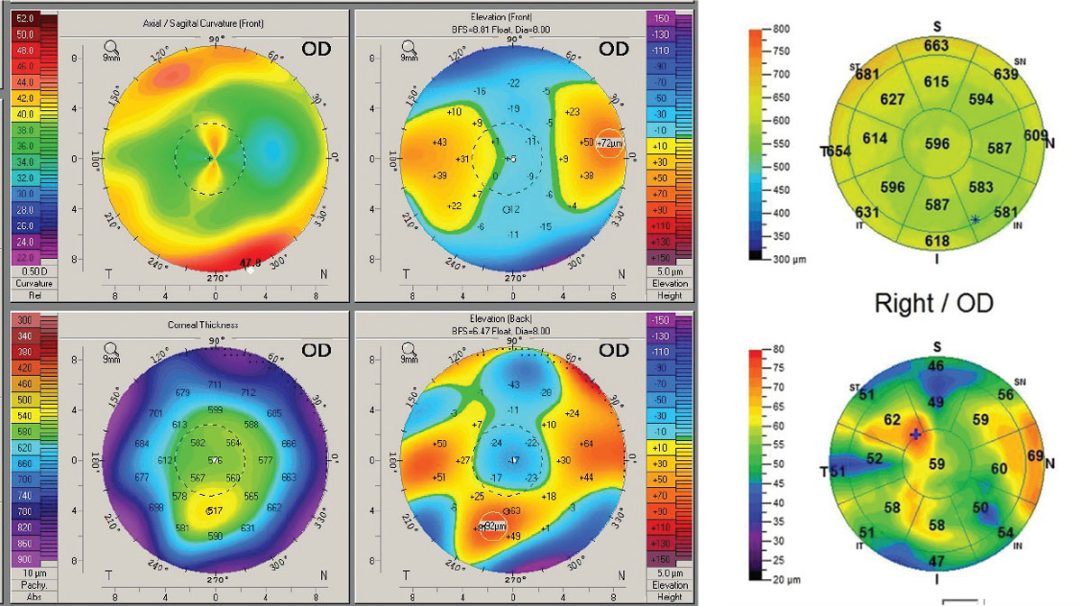 Fig. 8. Post-RK/LASIK. (Left) Pentacam 4-Map Refractive Display shows non-orthogonal irregular astigmatism within the pupillary zone and significant anterior elevation asymmetry. (Right) OCT pachymetry map shows significant irregularity of the epithelial thickness but no evidence of ectasia.