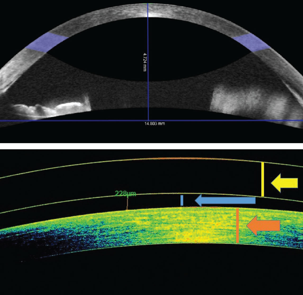 OCT of the anterior chamber can measure sagittal height as well as lens clearance—a beneficial tool for fittings.