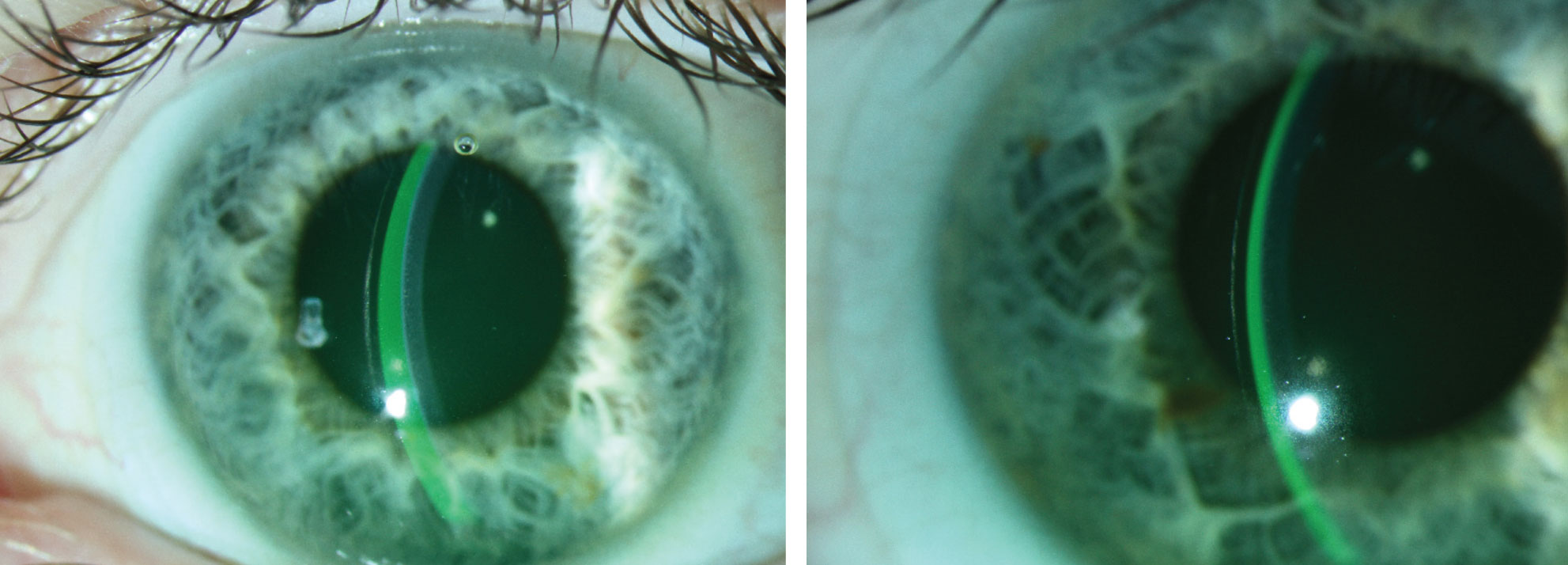 At right, the tear film and lens thickness are almost equal. The lens on the left shows excessive clearance, which could lead to decreased vision, post-lens debris and conjunctival impingement.