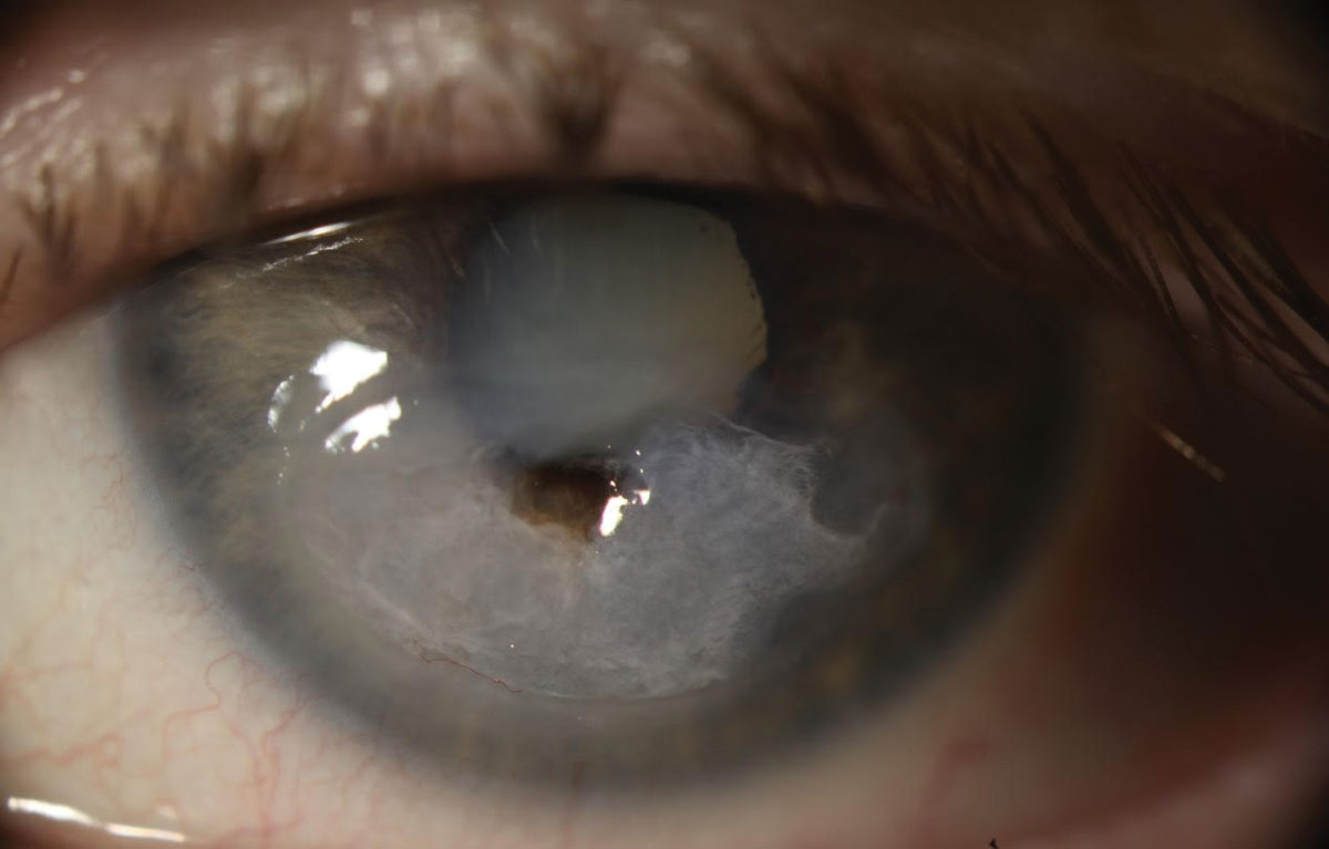Fig. 3. The patient underwent emergency penetrating keratoplasty (PK) followed by a repeat PK with cataract extraction. The culture performed prior to the first corneal transplant was negative for microbial growth. Due to a persistent epithelial defect following PK, she needed multiple Prokera (Bio-Tissue) membranes, tarsorrhaphy and an amniotic membrane transplant. Post-op visual acuity was 20/400 with pinhole acuity ranging from 20/80 to 20/200.