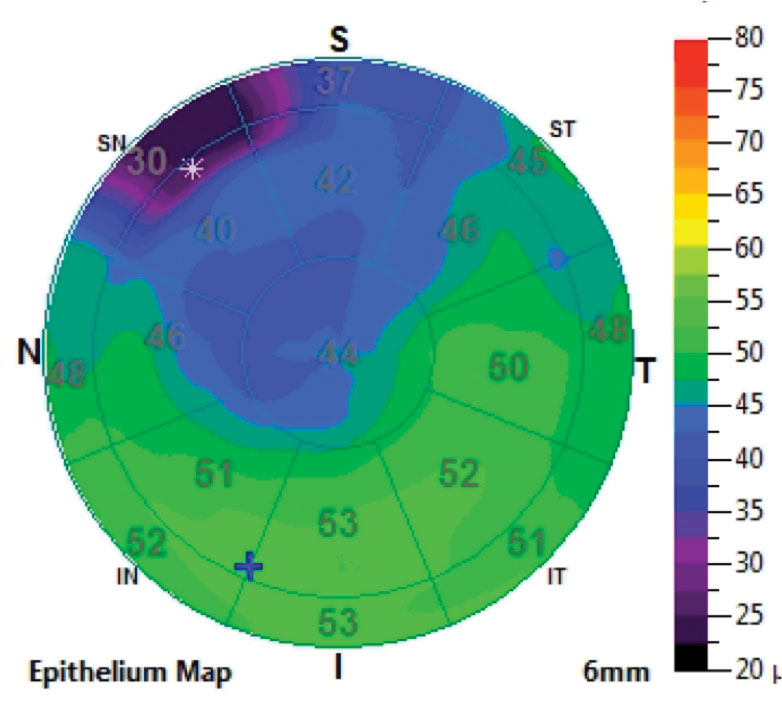Fig. 1. Epithelial thickness map shows thinning where the map pattern is located.