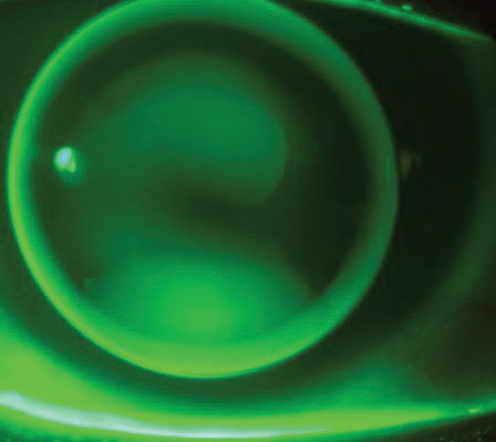 Corneal lens displaying feather apical touch with divided support in a mild keratoconic eye.