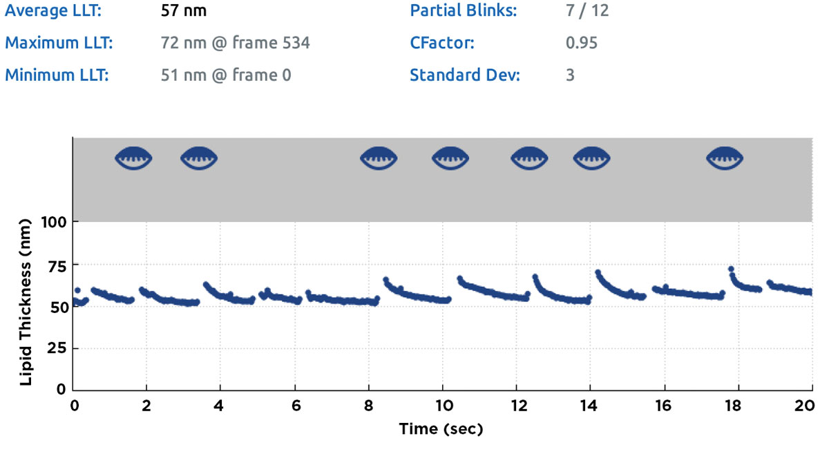 Fig. 3. Summary screen of a lipid layer thickness measurement obtained with the LipiView II. Partial blinks during the 20-second measurement and corresponding time-points are identified as partially closed lid icons in the grey area of the chart; the count for partial/total blinks (in this case, 7/12) is given in the summary table above the chart.