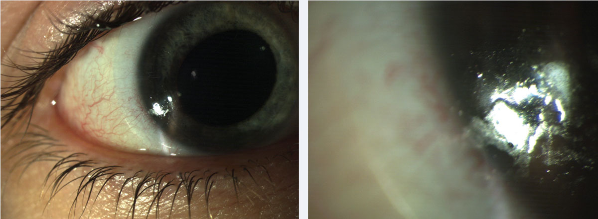 Fig. 1. Patients can present with both protein and lipid deposits. These common lens deposits are shown here at (left) low and (right) high magnification.