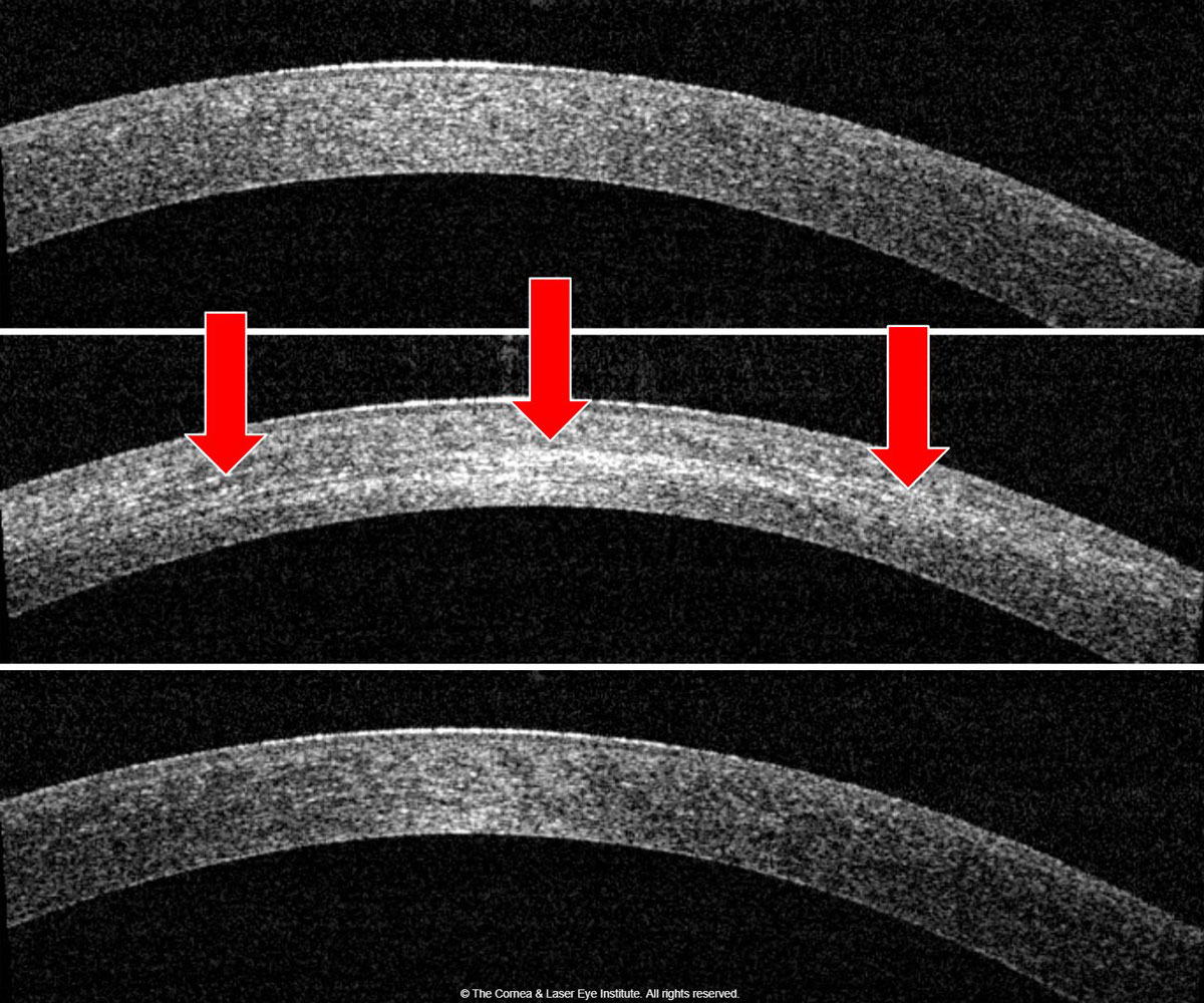 Fig. 1b. Corneal OCT shows the development of corneal haze from the pre-op (top) to one month post-op (middle). Note the presence of the demarcation line (red arrows), then resolution of corneal haze from the one-month post-op to the 12-month post-op (bottom).