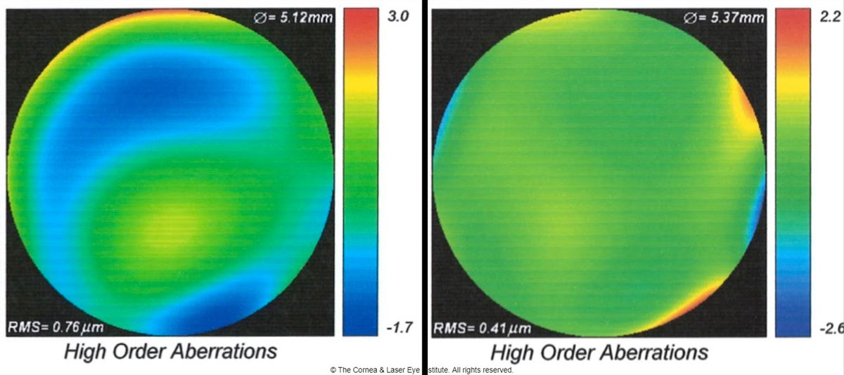 Fig 5. These are the total higher-order aberration maps of an eye of a patient with severe keratoconus while wearing a scleral lens. The map of total aberrations while wearing the final scleral lens corrected with spherical optics and a plano over-refraction (left) is compared with the final customized higher-order aberration correcting optics (right). A 46% reduction of total higher-order root mean square values was observed, translating to one to two lines of visual acuity improvement.